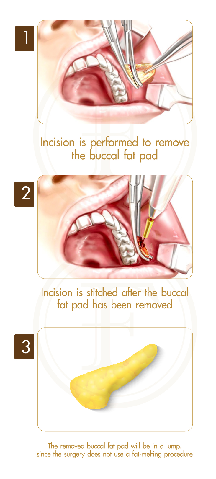 Buccal Fat Pad Removal – F Clinic premium aesthetic clinic.